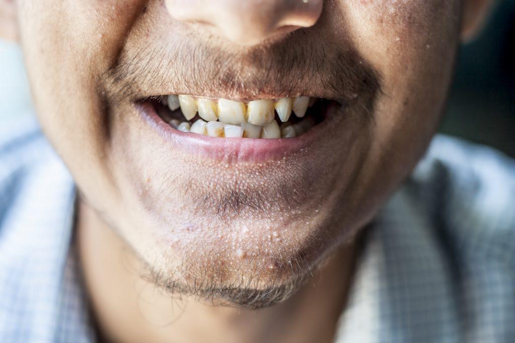 Bruine vlekken op tanden
