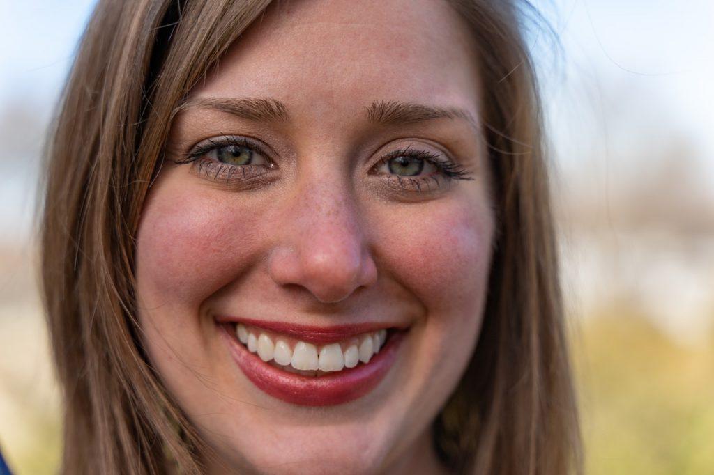 benefits teeth whitening